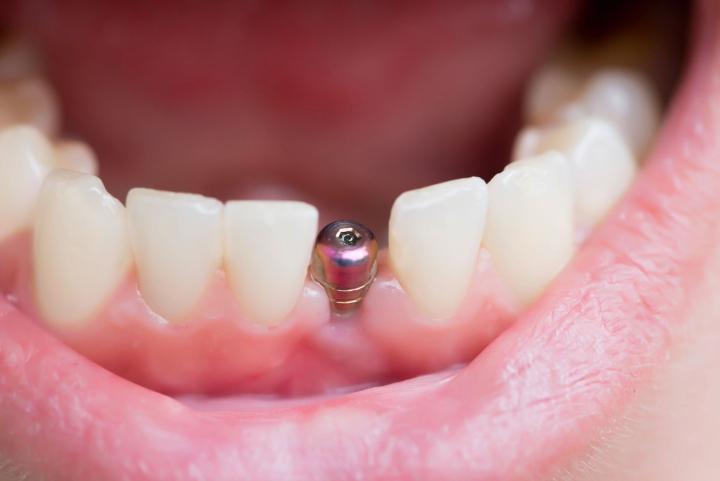 Hammasimplantti muodostuu keinojuuresta ja siihen liitettävästä hammasosasta. Hammasosaa kutsutaan proteettiseksi osuudeksi. Kela ei korvaa proteettisia toimenpiteitä paitsi rintamaveteraaneilla ja miinanraivaajilla.