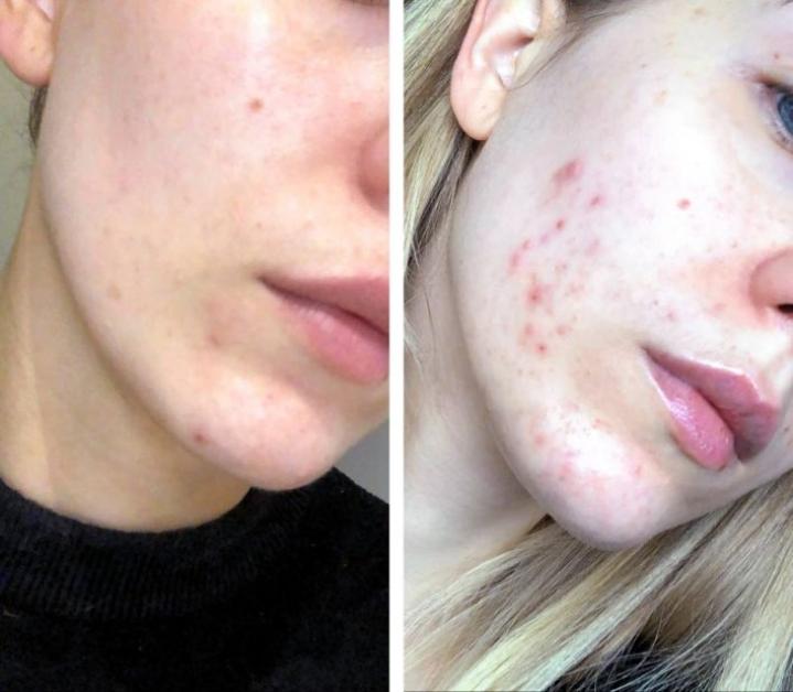 Maria Kalliokosken ihon kunto huonontui selvästi muutamassa kuukaudessa.