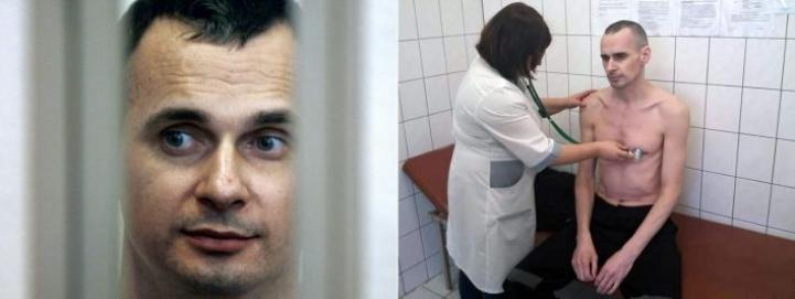 Sentsov oikeanpuoleisessa kuvassa 139 päivän syömälakon jälkeen. Vasemmanpuoleinen kuva on heinäkuulta 2015. Lehtikuva/AFP